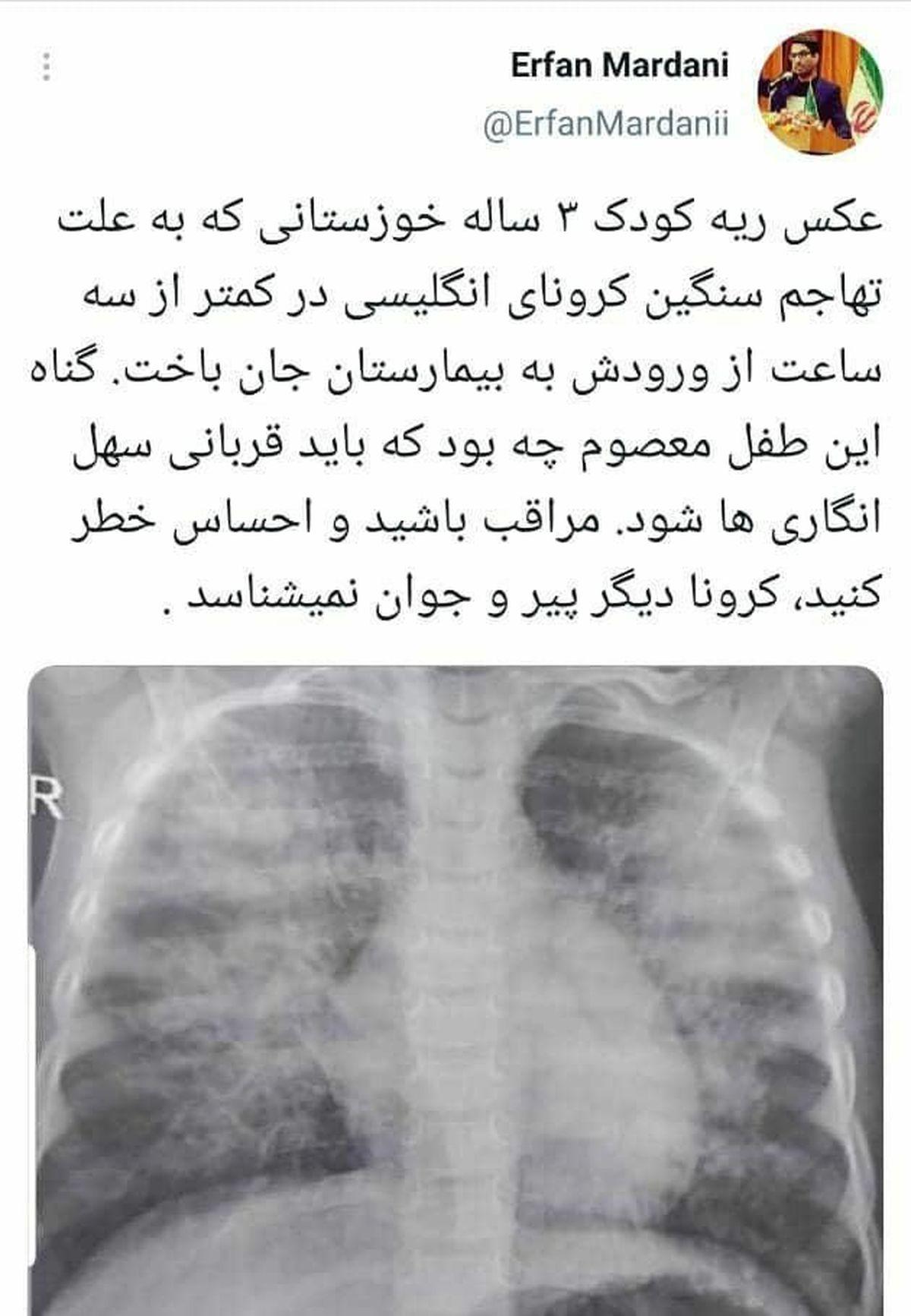 کودک ۳ ساله مبتلا به کرونا در خوزستان، کمتر از ۳ ساعت پس از رسیدن به بیمارستان جان باخت