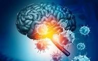 ویروس کرونا قشر خاکستری مغز را تغییر میدهد