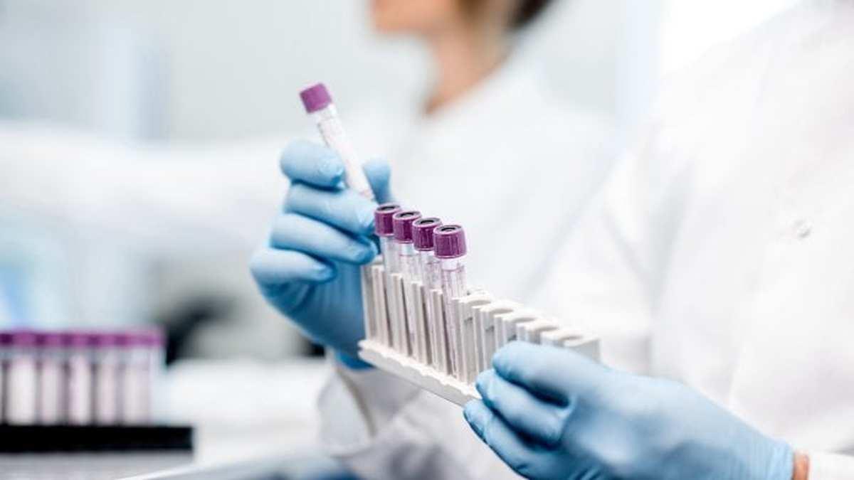 روسیه واکسن ویروس کرونا تا اواخرمردادرونمایی خواهد کرد