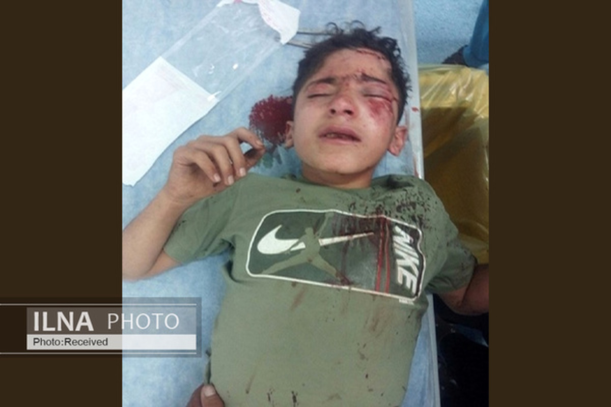 چشم مانی هاشمی کولبر ۱۴ ساله عمل شد | او را به تهران منتقل کردند