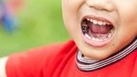علل پوسیدگی دندان های کودکان