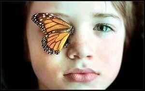 مشکلی در تأمین پانسمان بیماران «پروانهای» وجود ندارد