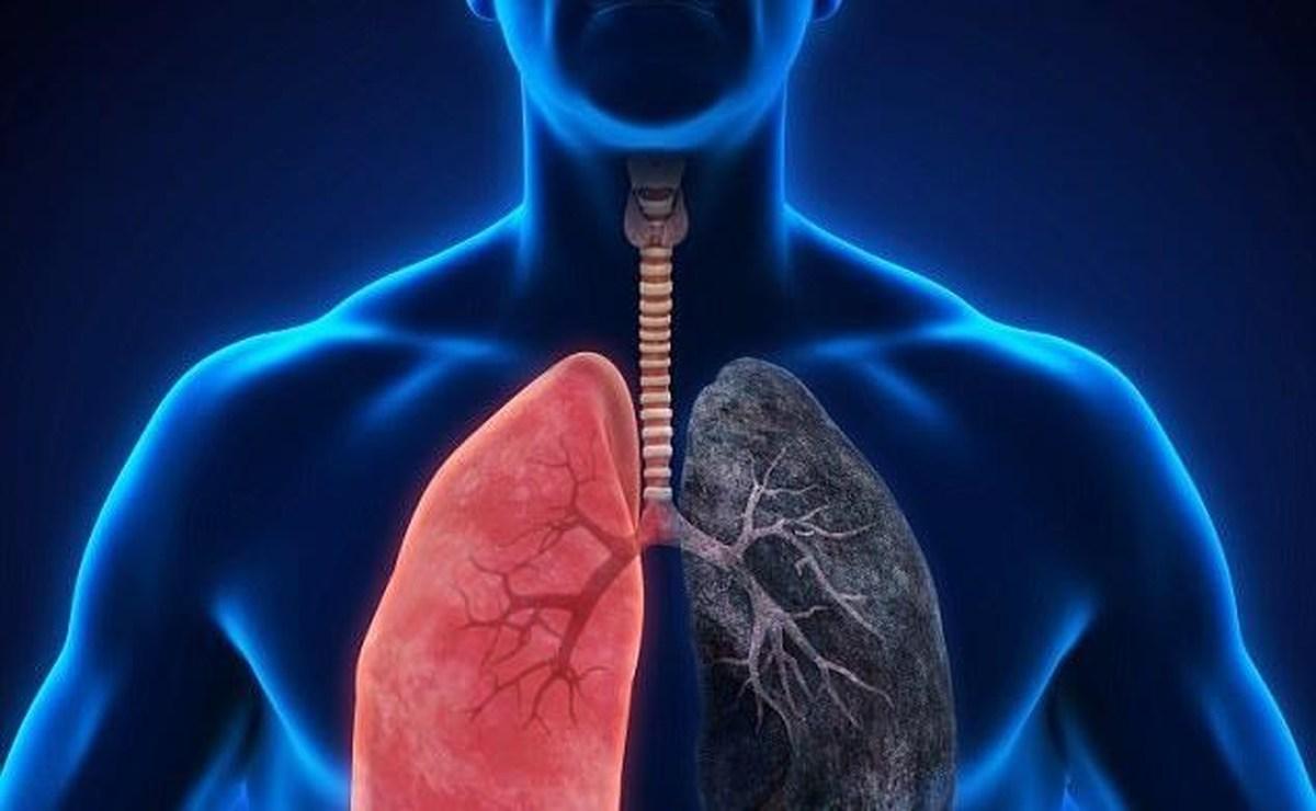 یک عامل مهم ابتلا به بیماری انسداد مزمن ریوی