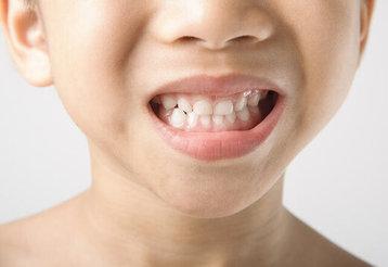 چرا کودکان به دندانقروچه مبتلا هستند؟