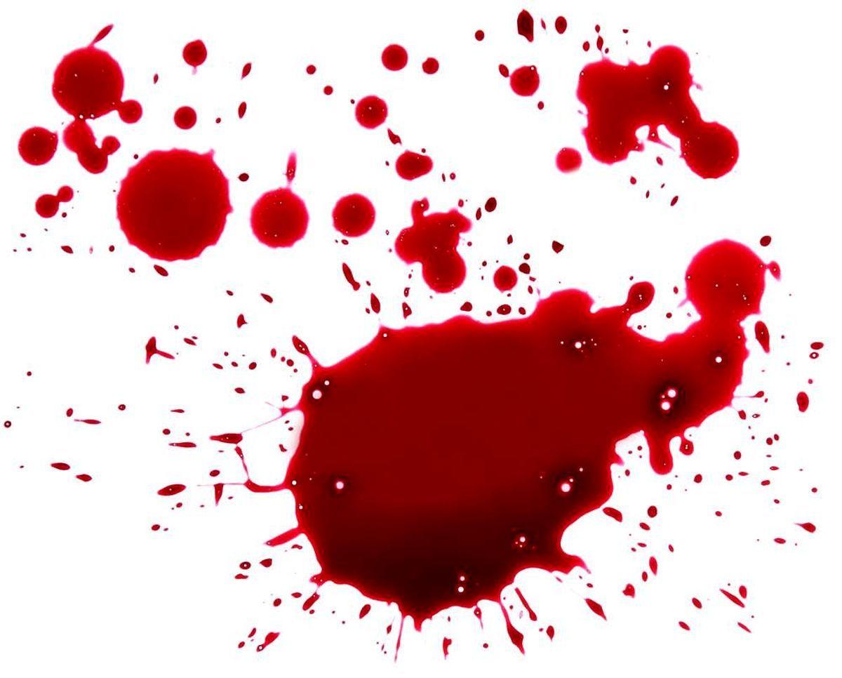 درگیری خونین ۲ پزشک متخصص در نیشابور | پزشک ضارب خودکشی کرد