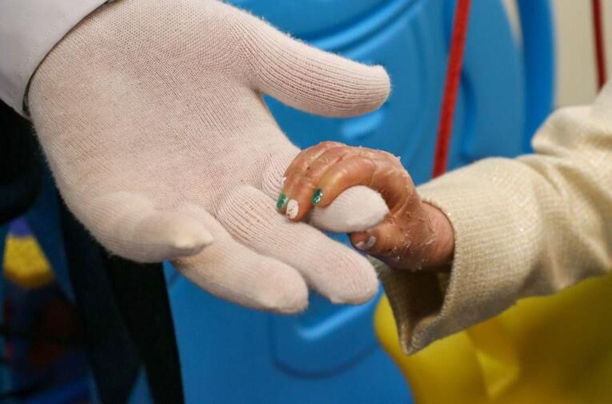 پانسمانهای مخصوص کودکان مبتلا به بیماری پوستی پروانهای رایونیسف به ایران ارسال کرد