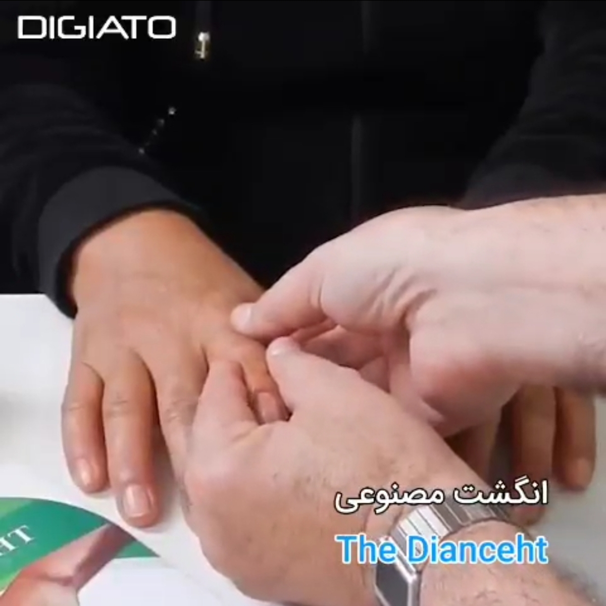 انگشت مصنوعی ای که کارایی یک انگشت واقعی را دارد! + ویدئو