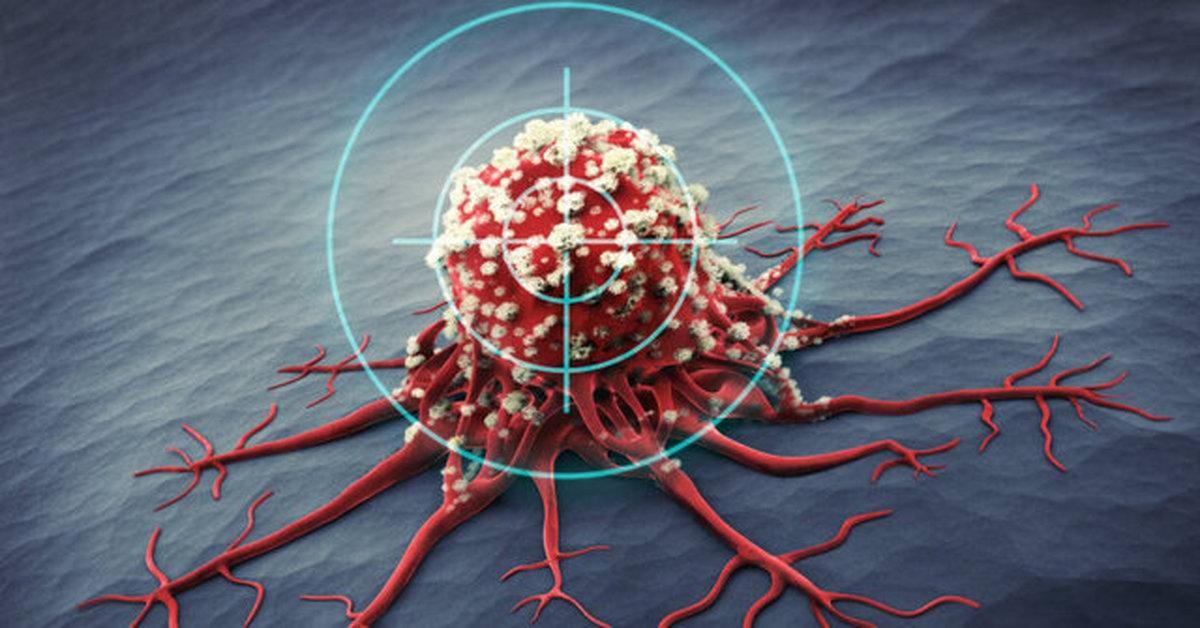 علایم و درمان سومین سرطان شایع زنان | مردان هم میتوانند واکسن HPV بزنند