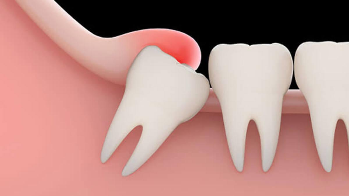 باکشیدن دندان عقل ، عملکردحس چشایی بهبود میابد