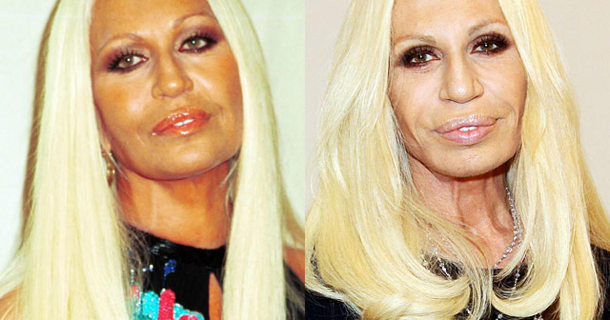 هنرپیشه های هالیوودی که با جراحی پلاستیک چهره خود را خراب کردند