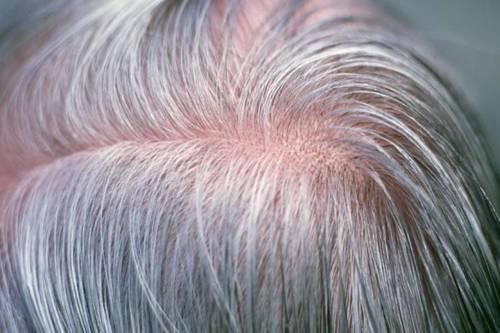آیا استرس باعث تغییر رنگ مو میشود؟
