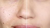 عادتهای اشتباه که می تواند باعث جوش زدن پوست صورت  شود