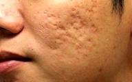 درمان جوش صورت با این روش ساده |نکته مهم در مصرف راکوتان