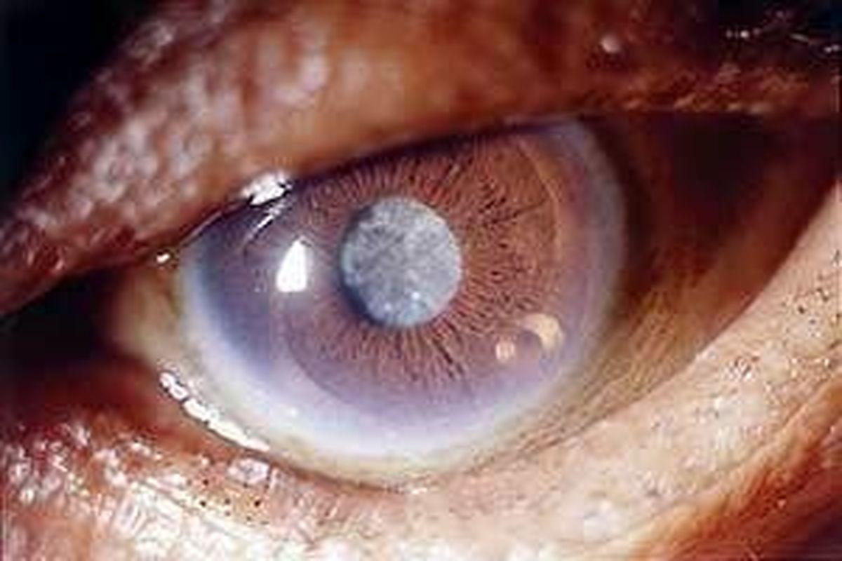 اثر کرونا به «چشم» چگونه است؟