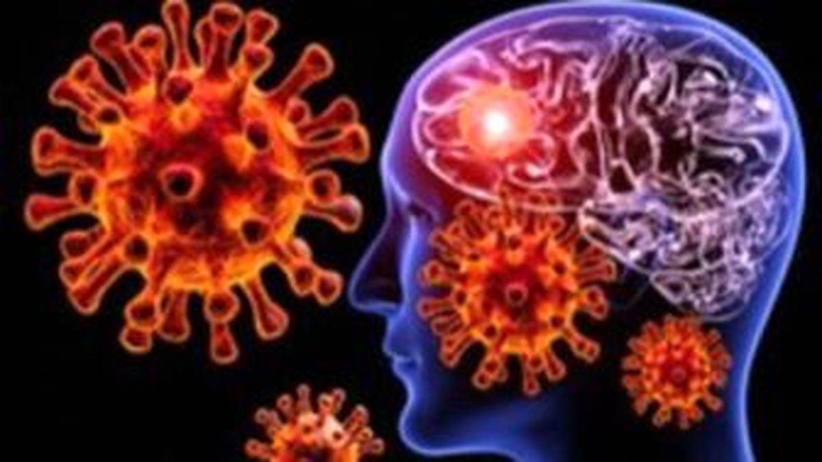 بیماری که باعث اختلال در کار سیستم مغز میشود