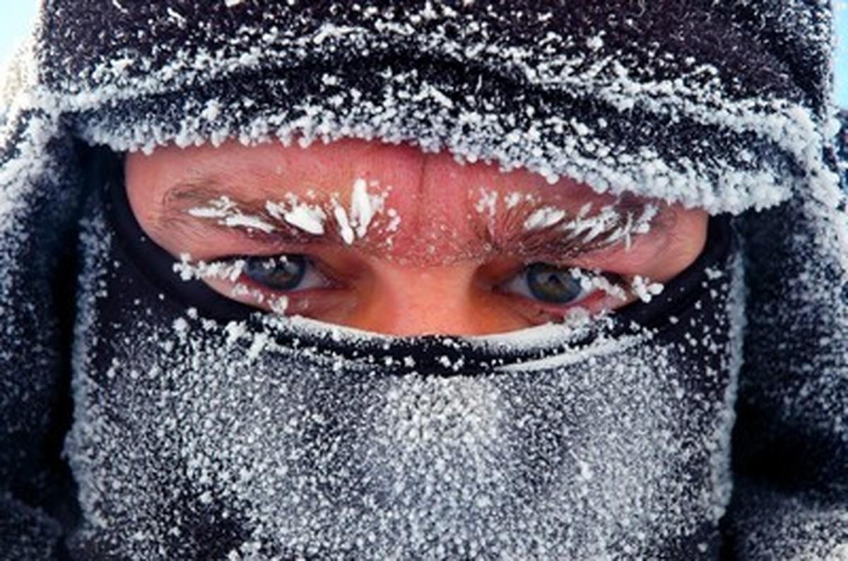 سرمازدگی چیست و در مواجهه با آن چه باید کرد؟