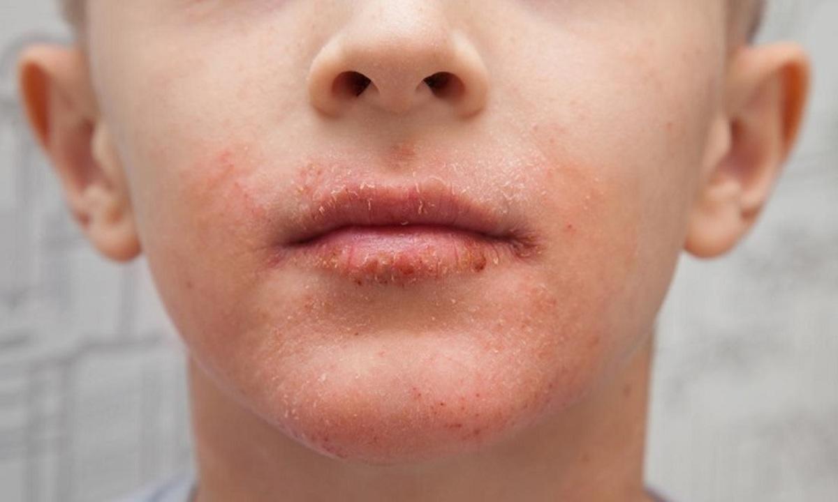 خشکی پوست اطراف دهان؛ دلایل و درمان
