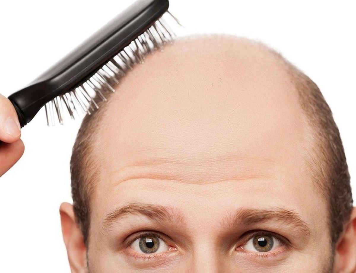 طب سنتی ریزش موهایتان را درمان می کند