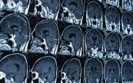 سخنرانی ۱۰سخنران برجسته درباره به روزترین موضوعات نقشه برداری مغز