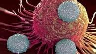 چند توصیه برای کاهش خطر ابتلا به سرطان