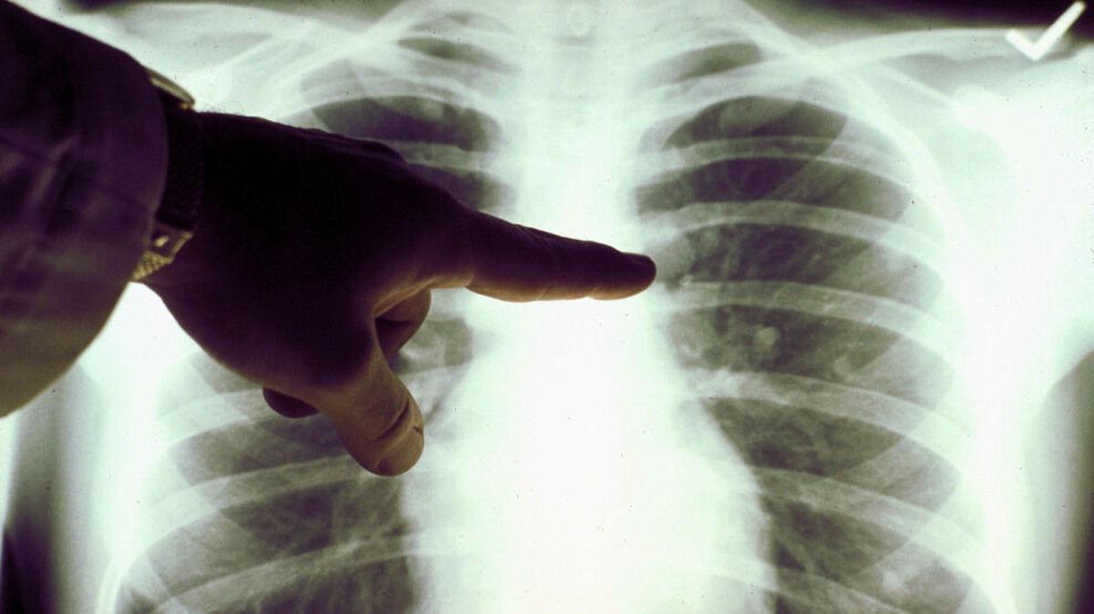 تشخیص سرطان ریه با استفاده از هوش مصنوعی
