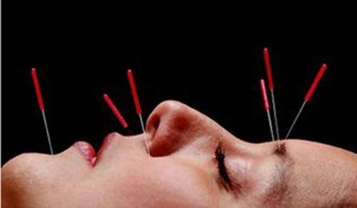 استفاده از طب سوزنی و مکمل در درمان کرونا صحت دارد؟