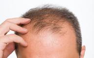 صنعت چند میلیارد دلاری درمان ریزش مو