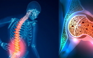 ۵۰ هزار سال عمر مفید ایرانیها تحتتاثیر پوکی استخوان |  بیماری که اهمیت آن از سرطان بیشتر است