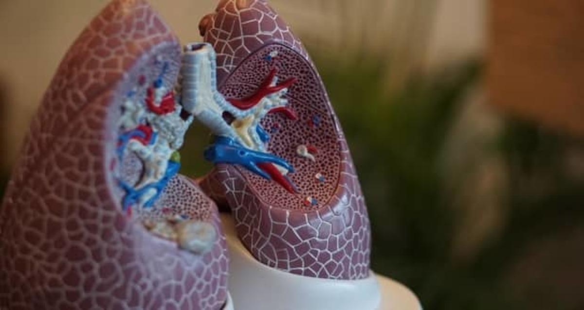 برخی ترکیبات ماریجوانا از ریهها در مقابل ویروس کرونا محافظت میکنند
