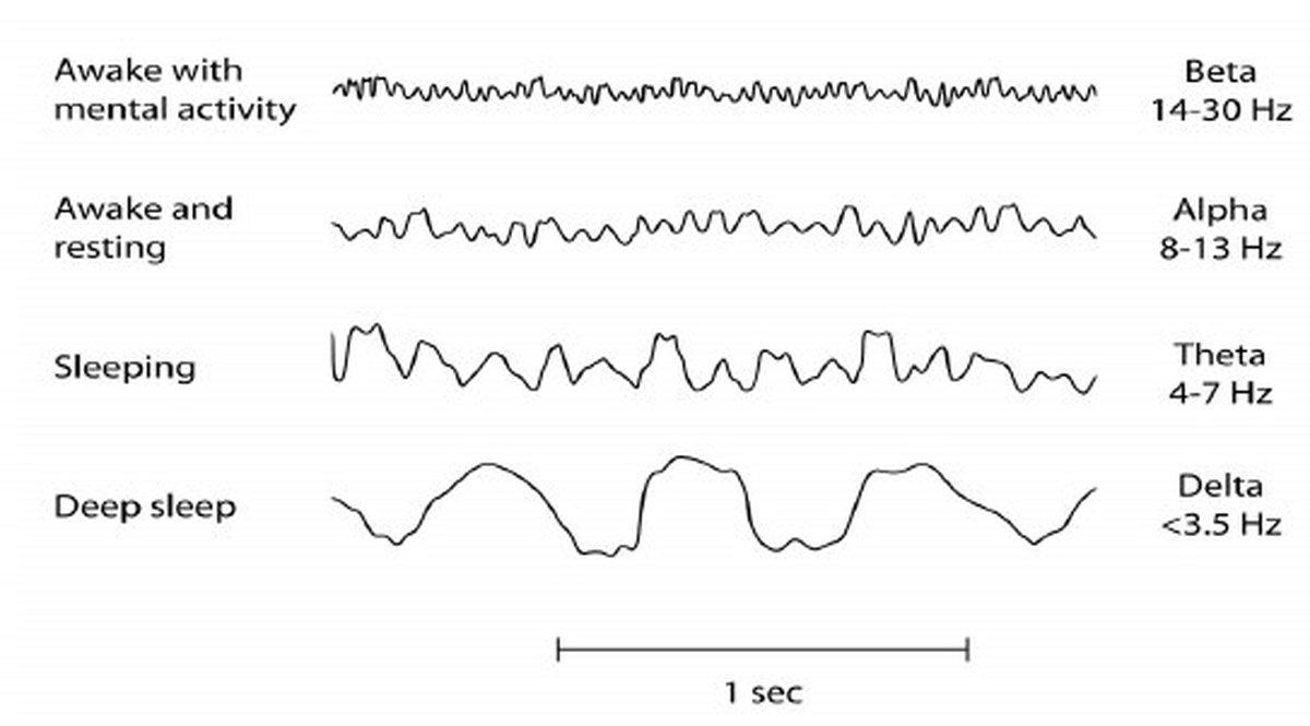 تشخیص پارکینسون با استفاده از نوار مغز