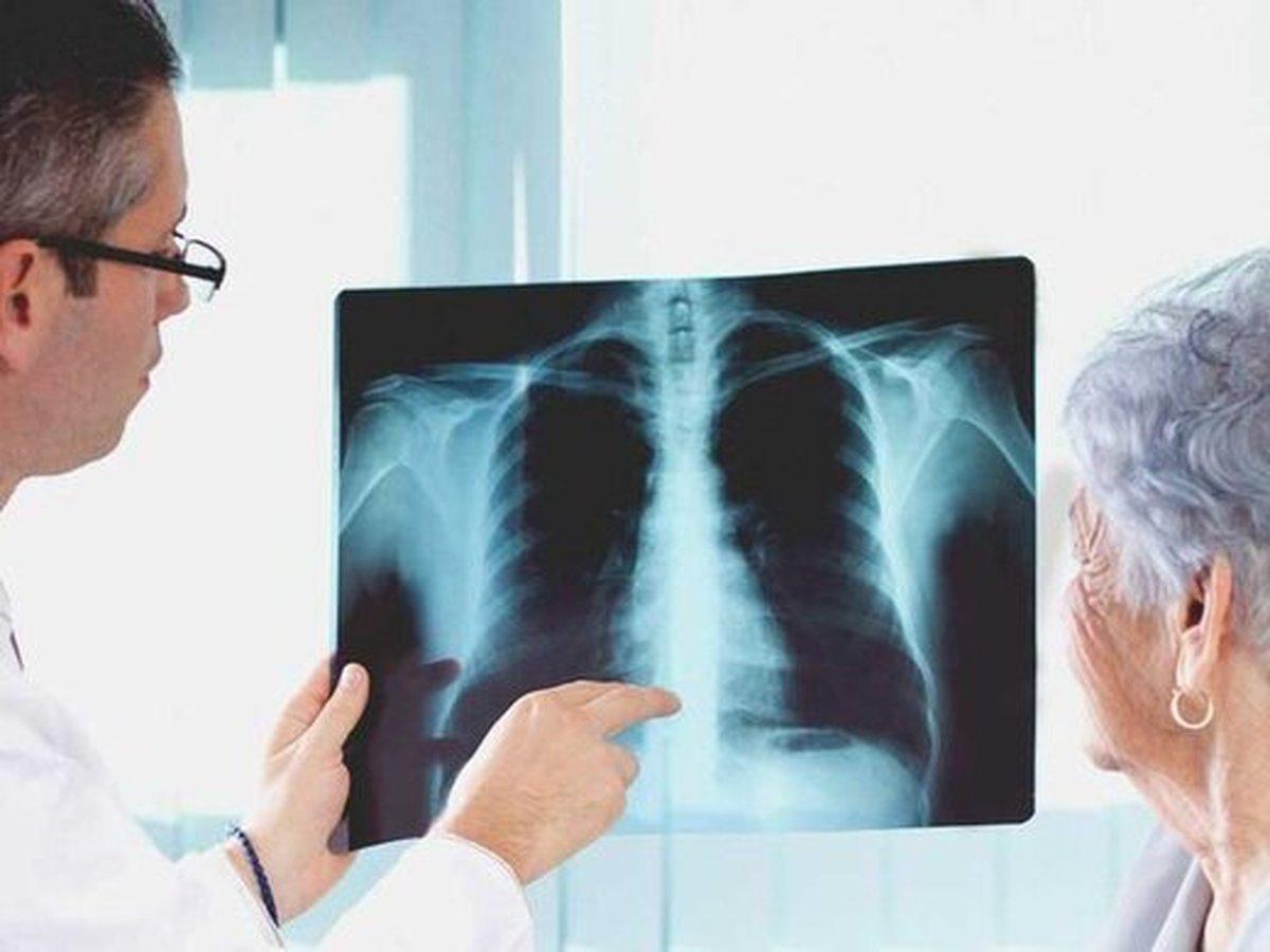 چرا عفونتهای تنفسی در مبتلایان به دیابت کشندهترند؟